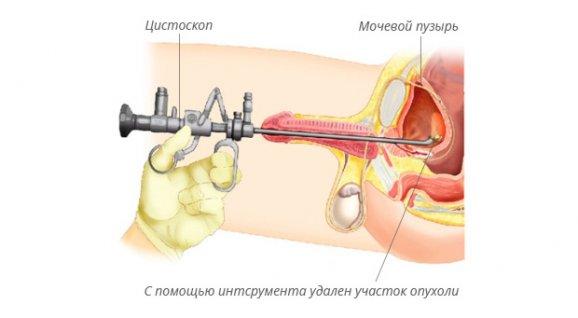 цистокопия у мужчин