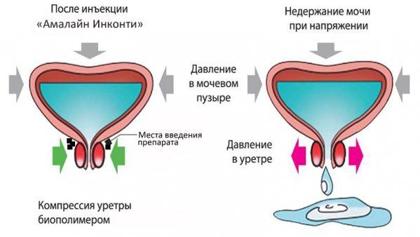 напряжение в мочевом пузыре