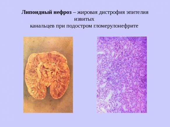 липоидный нефроз