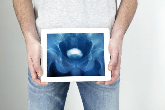 рентген мочевого пузыря