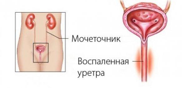 воспаленный мочеточник