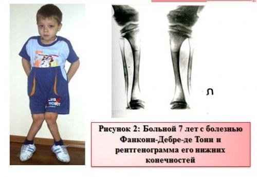 рентгенограмма нижних конечностей