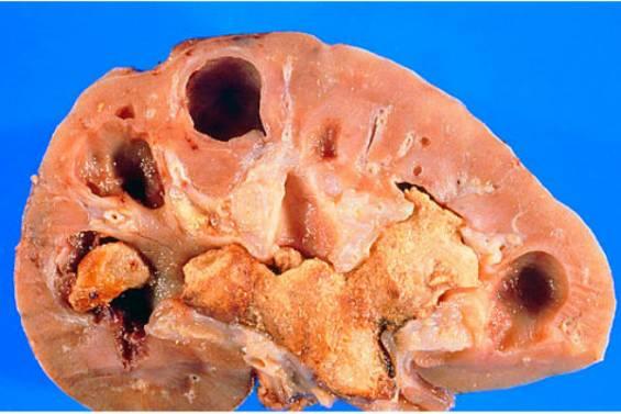 мочесолевая болезнь