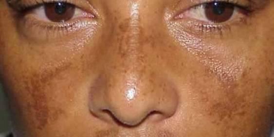 пятна на лице