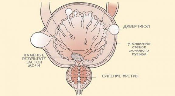 утолщение мочевого пузыря