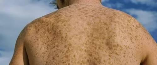 коричневые пятна на спине