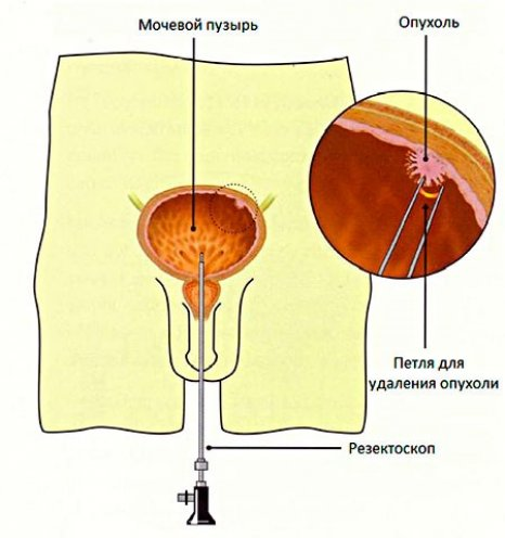 удаление опухоли в мочевом пузыре