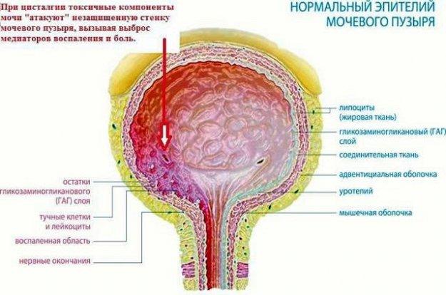 Цисталгия мочевого пузыря