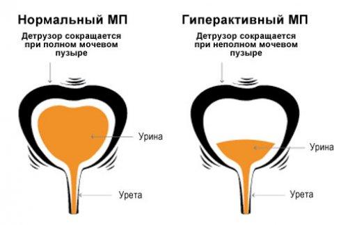 сокращение мочевого пузыря