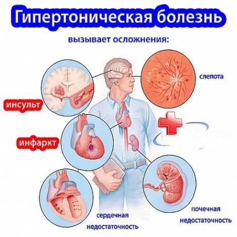 гипертония при заболеваниях почек