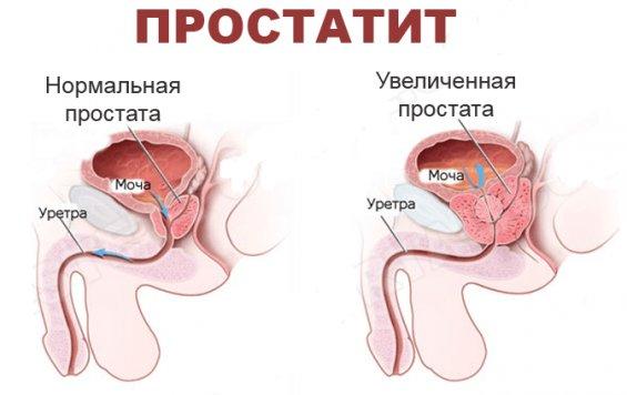 влияние простатита на мочу