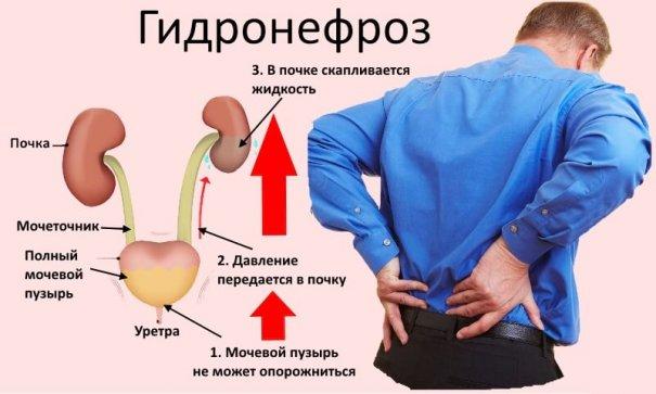 Опущение почки: причины, симптомы, лечение, последствия