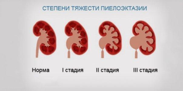 стадии пиелоэктазии