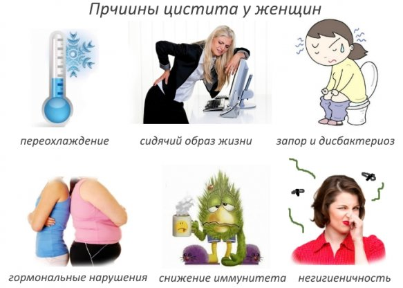 Уретрит и цистит у женщин причины и лечение