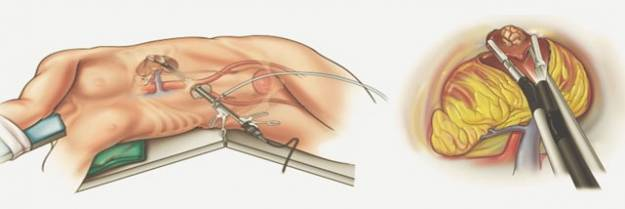 удаление органа