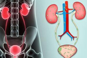 инфекция в мочеполовой системе