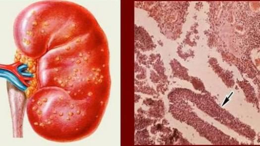 ткань почки под микроскопом