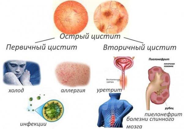 Обезболивающее при цистите быстро снимаем боль